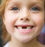 Для чего лечить молочные (временные) зубы, они же и так, выпадут?!