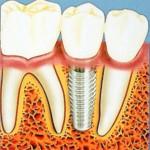 Насколько необходимо протезирование при отсутствии зуба?