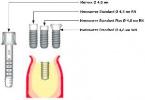 Немного об имплантации и качестве имплантантов
